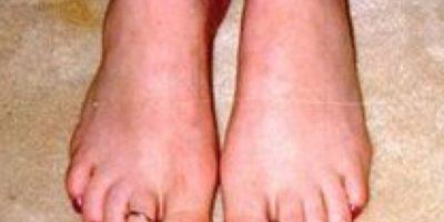 No permiten usar zapatos cerrados. Se pueden partir. Foto:vía NowayGirl