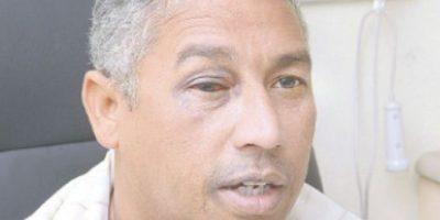 Fotógrafo herido por un policía sigue sin visión en ojo derecho