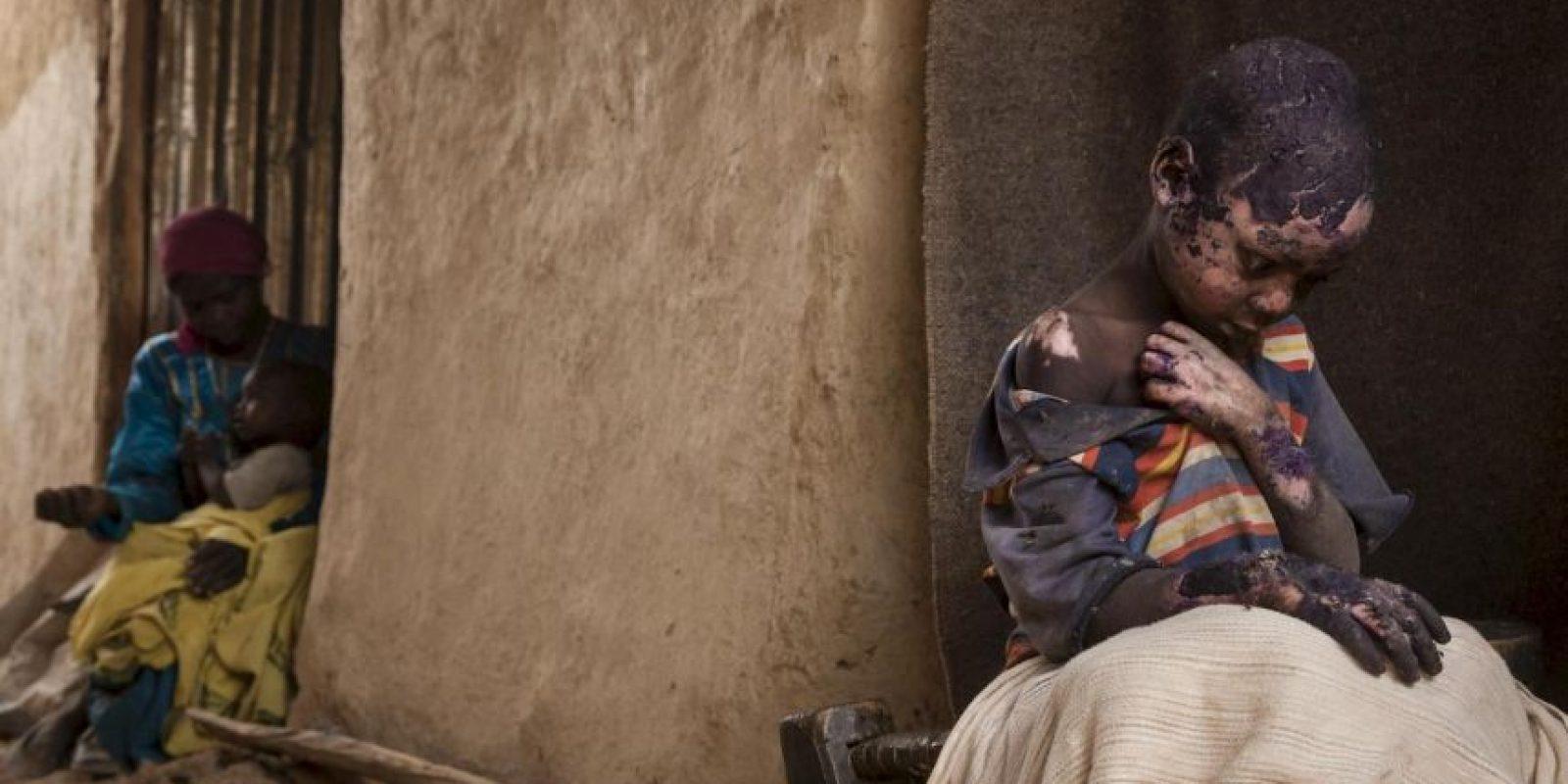 Adriane Ohanesian. Muestra a un niño con extremas quemaduras después de que cayó una bomba en Sudán. Foto:worldpressphoto.org