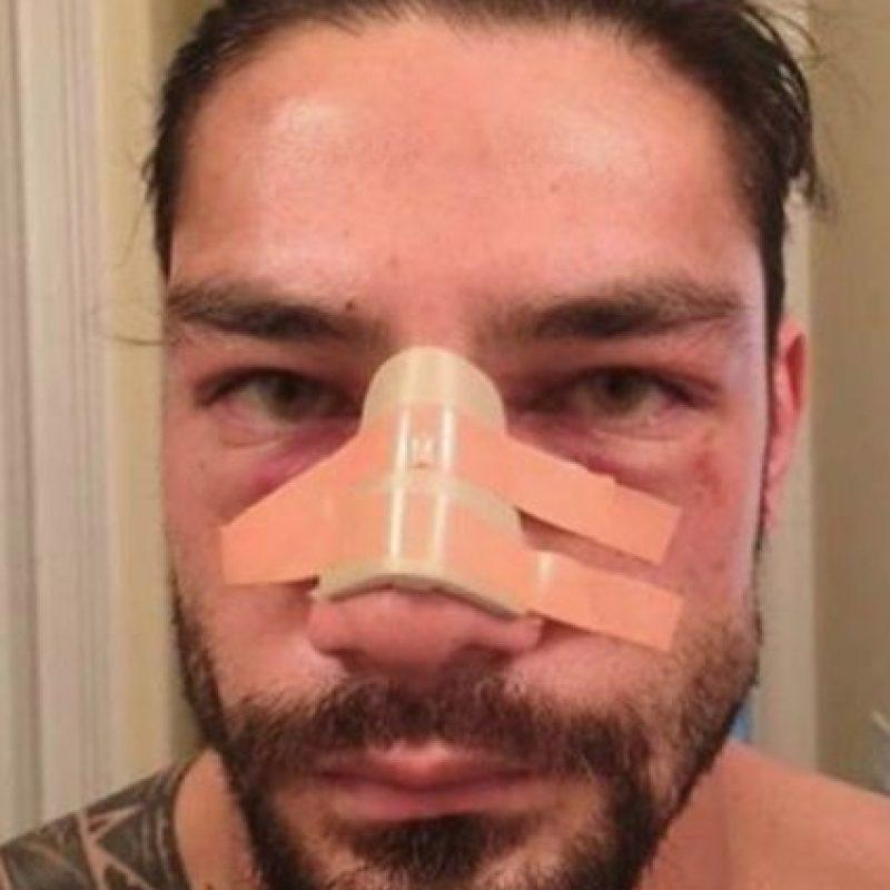Así quedó Roman Reigns después del fuerte castigo que le propinó Triple H Foto:WWE
