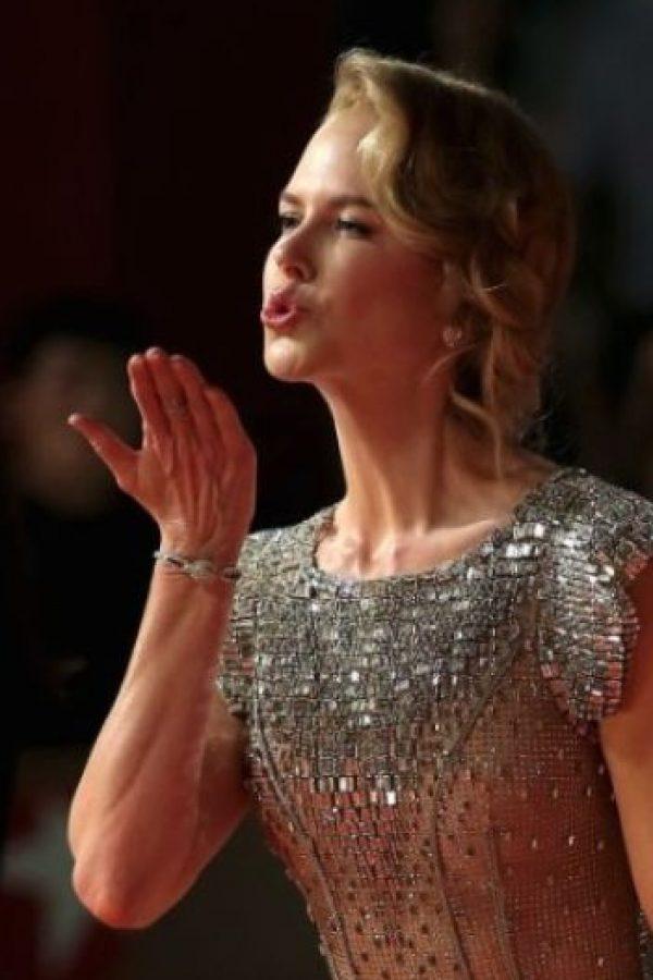 Nicole Kidman: la actriz australiana padece de papiliofobia, que es el miedo a las mariposas. Foto:Getty Images