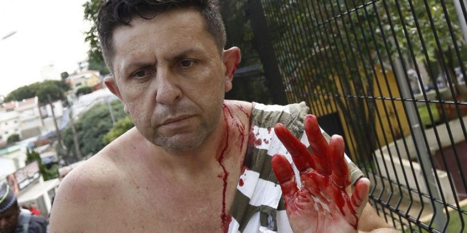 Lo que dejó algunos heridos Foto:AFP