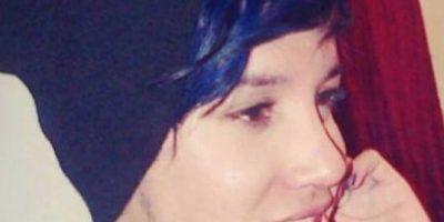 Joven casi muere luego de que le inyectaran biopolímeros en el rostro
