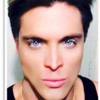 Tiene 27 años y 8 cirugías Foto:Vía Facebook/Mauricio Galdi