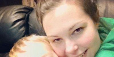 """""""Mi amiga tenía una infección por estafilococo en su cara y yo estaba usando su cepillo justo antes."""" Eso afirmó la mujer, que ahora estará en silla de ruedas. Foto:vía Instagram"""
