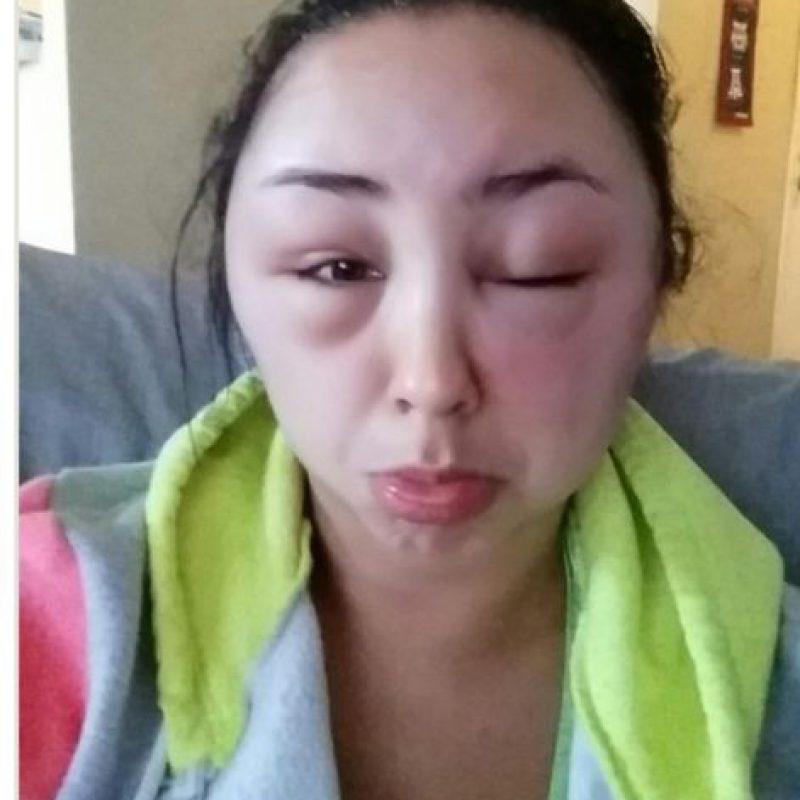 Todo por una reacción alérgica. Foto:vía Imgur