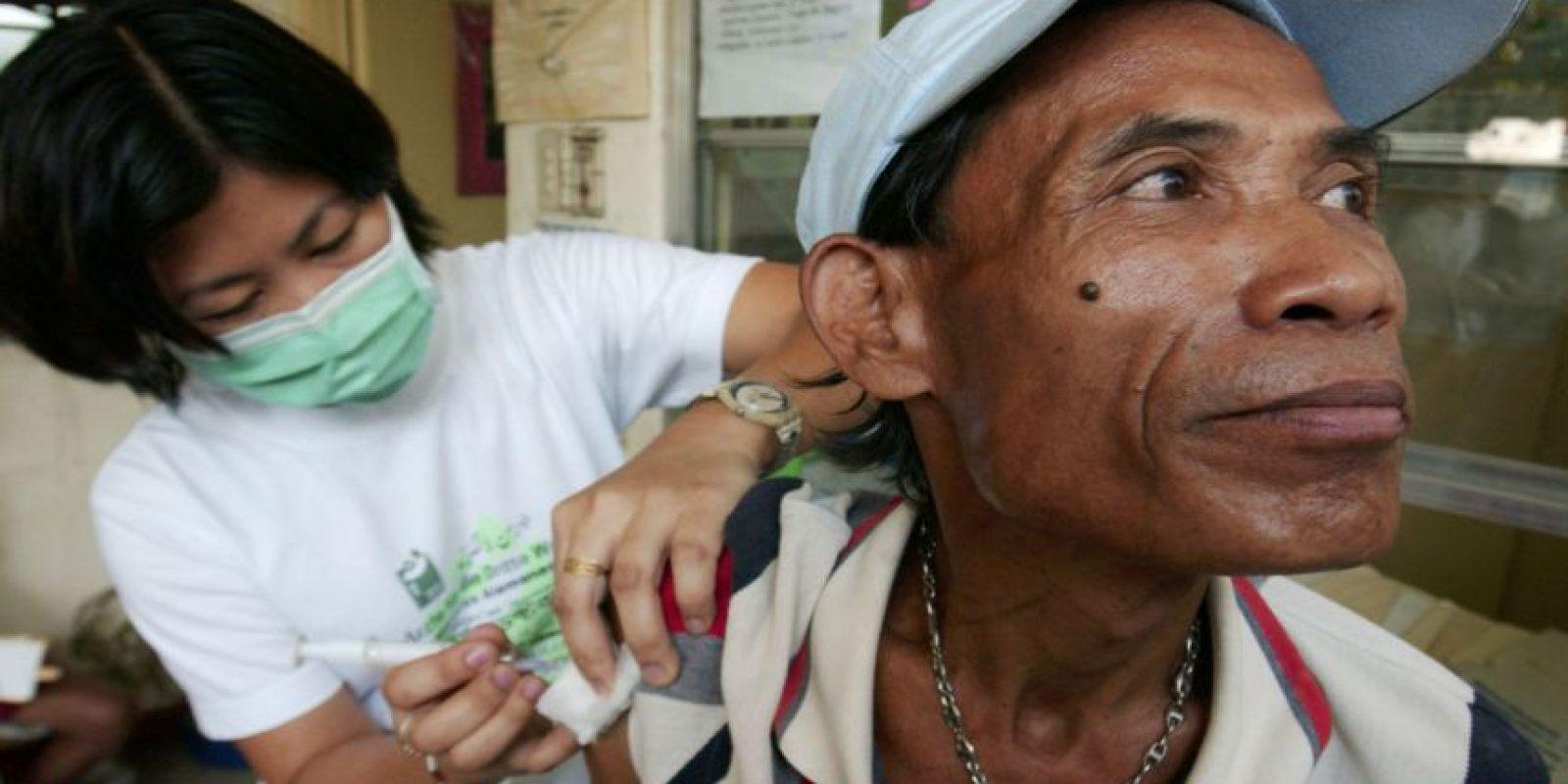 La antigüedad de esta enfermedad es de entre 15.000 y 20.000 años. Foto:Getty Images