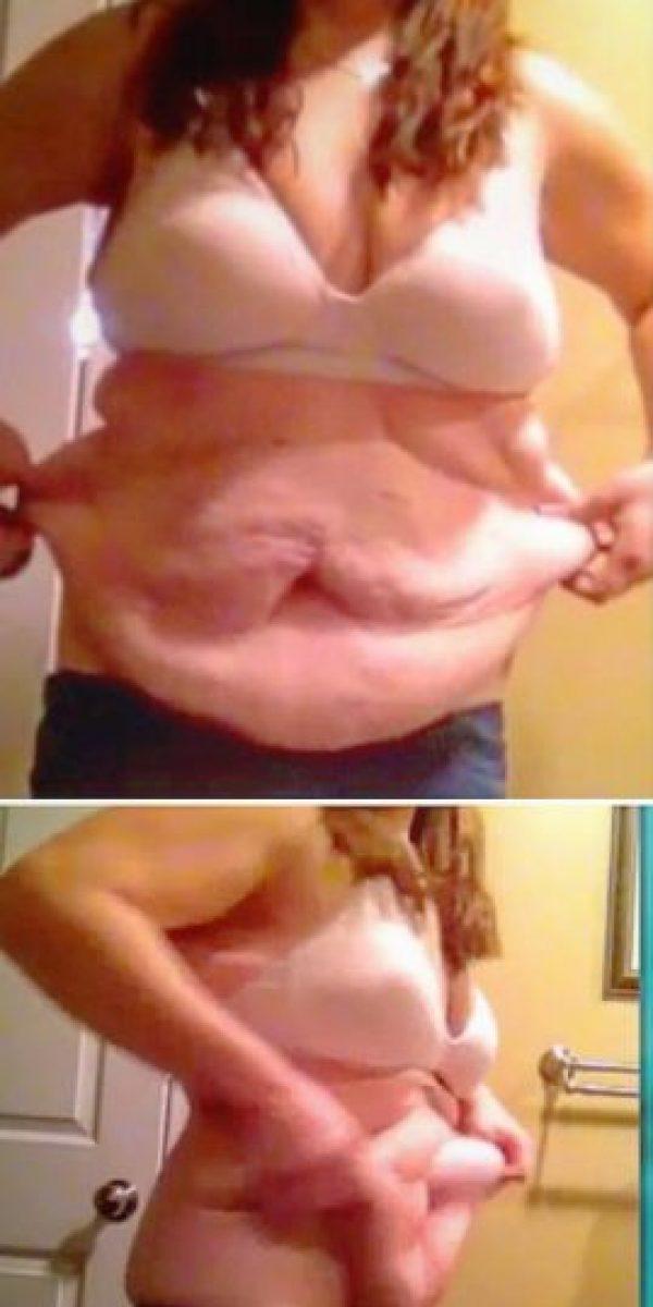 Así ha quedado su piel después de perder 74 kilos (163 libras) Foto:Instagram/maxwel1ma