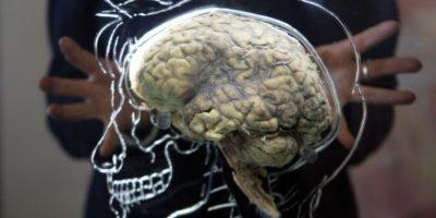 Para saber si nuestro problema de memoria puede ser degenerativo, el especialista recomienda: Acudir con un Neuropsicólogo, él es el especialista que puede ayudarnos a ubicar si el problema es grave. Foto:Getty Images
