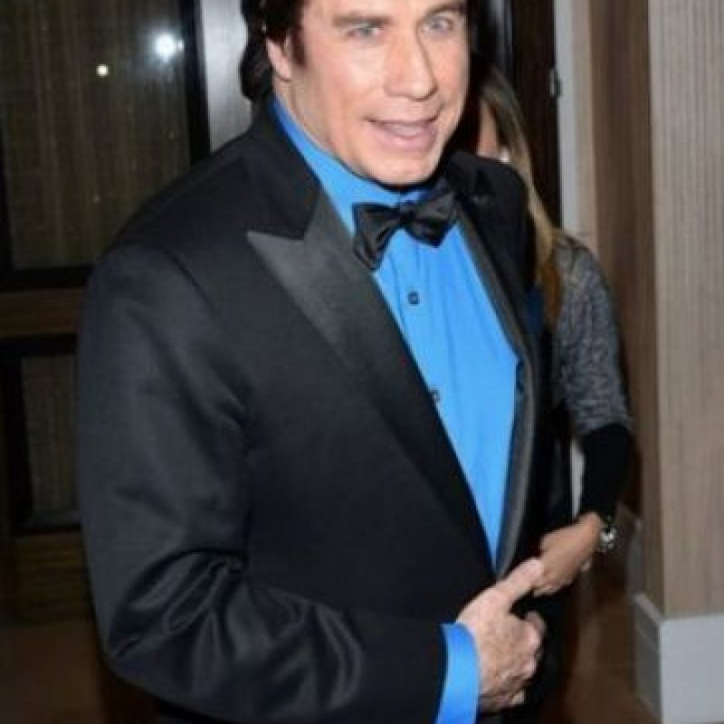 Antes y después de John Travolta Foto: Getty Images