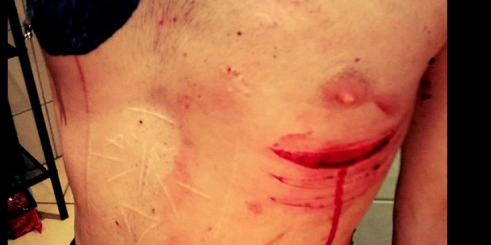 Ahora ama las cicatrices. Foto:vía Facebook