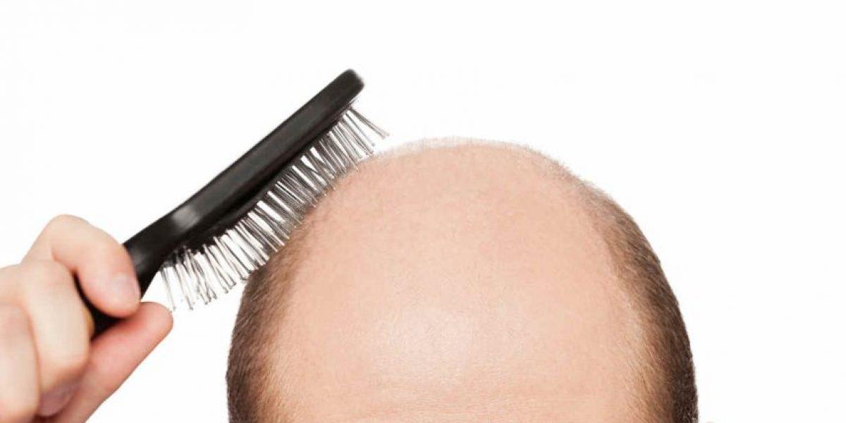 Injerto de pelo: La cura para la calvicie