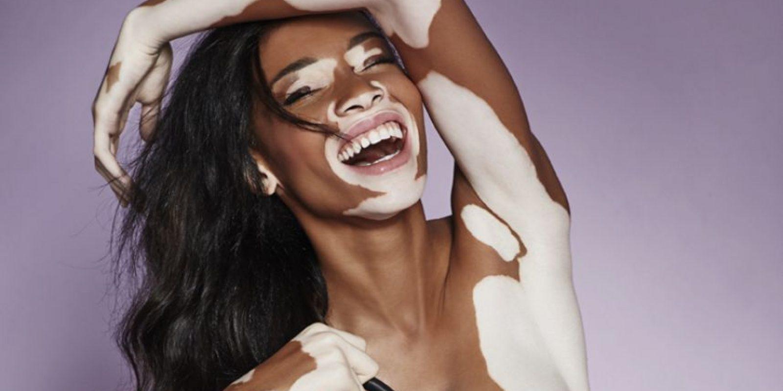 Datos que debes saber sobre vitiligo • El vitiligo no es una enfermedad contagiosa.• Tener vitíligo no es sinónimo de muerte, es decir, esta afección no mata.• Se desconocen las causas de esta condición en la piel. Algunos especialistas lo han vinculado a factores hereditarios.• No tiene cura. Algunas personas optan por recibir tratamiento para conservar la estética de la piel, sin embargo, algunos dermatólogos entienden que el mejor tratamiento es dejar que la afección progrese de manera natural sin interferencias.• Se puede presentar a cualquier edad, sin embargo, tiene mayor incidencia en las personas que tienen entre 10 y 30 años de edad.• Las manchas blancas suelen empezar en las manos y luego en el rostro. Hay quienes en poco tiempo tienen todo el cuerpo despigmentado y podrían parecer albinos.• El vitiligo no afecta otros órganos. Tiene mayor incidencia en las emociones de la persona que lo padece y de quienes le rodean. Se recomienda, en estos casos, psicoterapias. Foto:Fuente externa