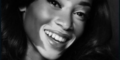 El vitiligo, una puerta abierta a la discriminación