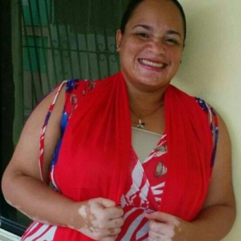 Gisell Rodríguez Mercedes, joven de 33 años diagnosticada con vitiligo.