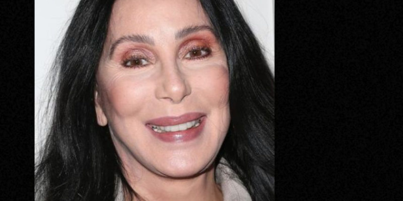 Cher también abusó de los procedimientos estéticos. Foto:vía Getty Images