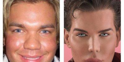 """""""Ken Humano"""" renuncia a las cirugías tras casi arruinar su cara"""