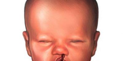 Hasta el domingo operarán gratis el labio y paladar hendido a niños pobres