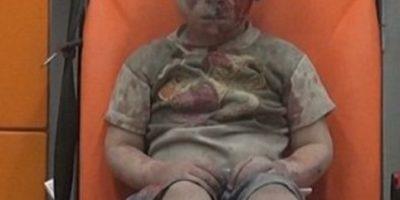 Hermano de niño sirio que se hizo viral murió por sus heridas