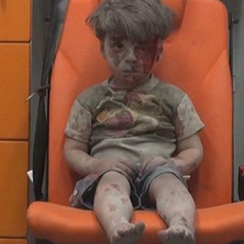 Omran conmocionó al mundo. Foto:AFP