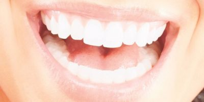 Cómo lograr una dentadura perfecta