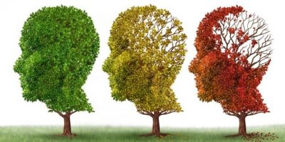 Infografía ¿Qué hacer si es diagnosticado con Alzheimer?