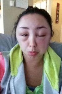 Resulta que luego de realizarse el cambio de color, sufrió una fuerte alergia y estas fueron las consecuencias. Foto:Reddit
