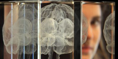 En el mundo entero hay unos 47.5 millones de personas que padecen demencia, y cada año se registran 7.7 millones de nuevos casos. Foto:Getty Images