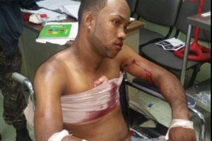 Uno de los asaltantes heridos luego del asalto Foto:Fuente Externa