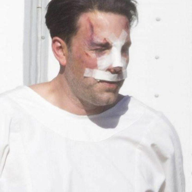 Y la nariz vendada, el actor fue fotografíado por los paparazzi en Los Ángeles, California. Foto:Grosby Group