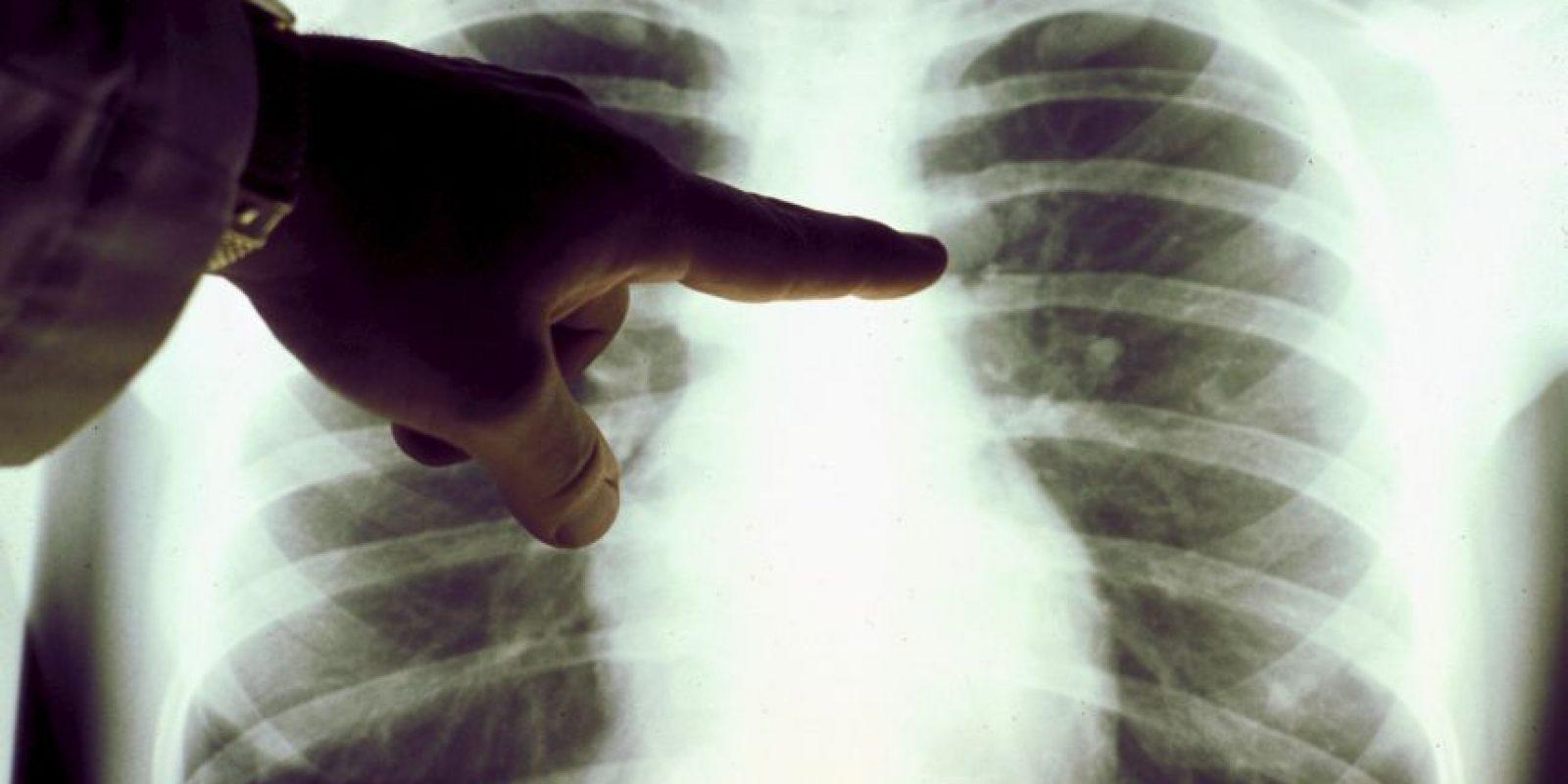 Consejos para prevenir el cáncer Foto:Getty Images