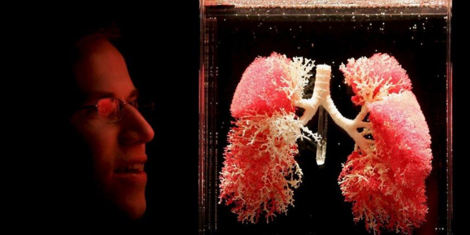 3. Streptococcus pneumoniae es la causa más común de neumonía bacteriana en niños. Foto:Getty Images