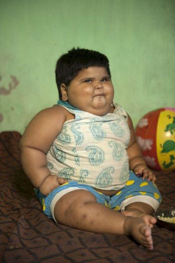 Su apetito es insaciable. Nació con 18 kilogramos (41 libras).