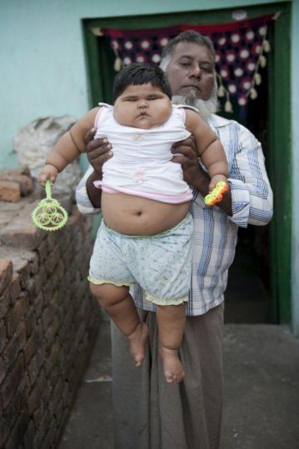 Ayla Saleem pesa actualmente 24 kilogramos. Esto la hace una de las bebés más obesas del mundo.