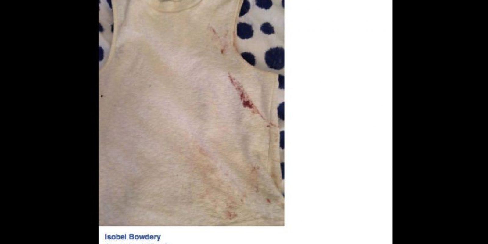 Publicó en Facebook su testimonio y su prenda, recuerdo del horror que vivió. El post se hizo viral. Foto:vía Facebook/Isobel Bowdery