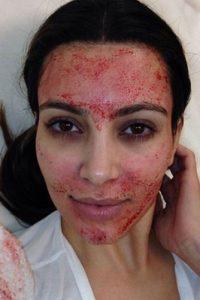 La socialité causó gran controversia cuando apareció con el rostro bañado en sangre de sus propias venas. Foto:vía instagram.com/kimkardashian