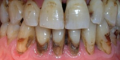 14 dentaduras peores que el sueño de perder los dientes Foto:Tumblr