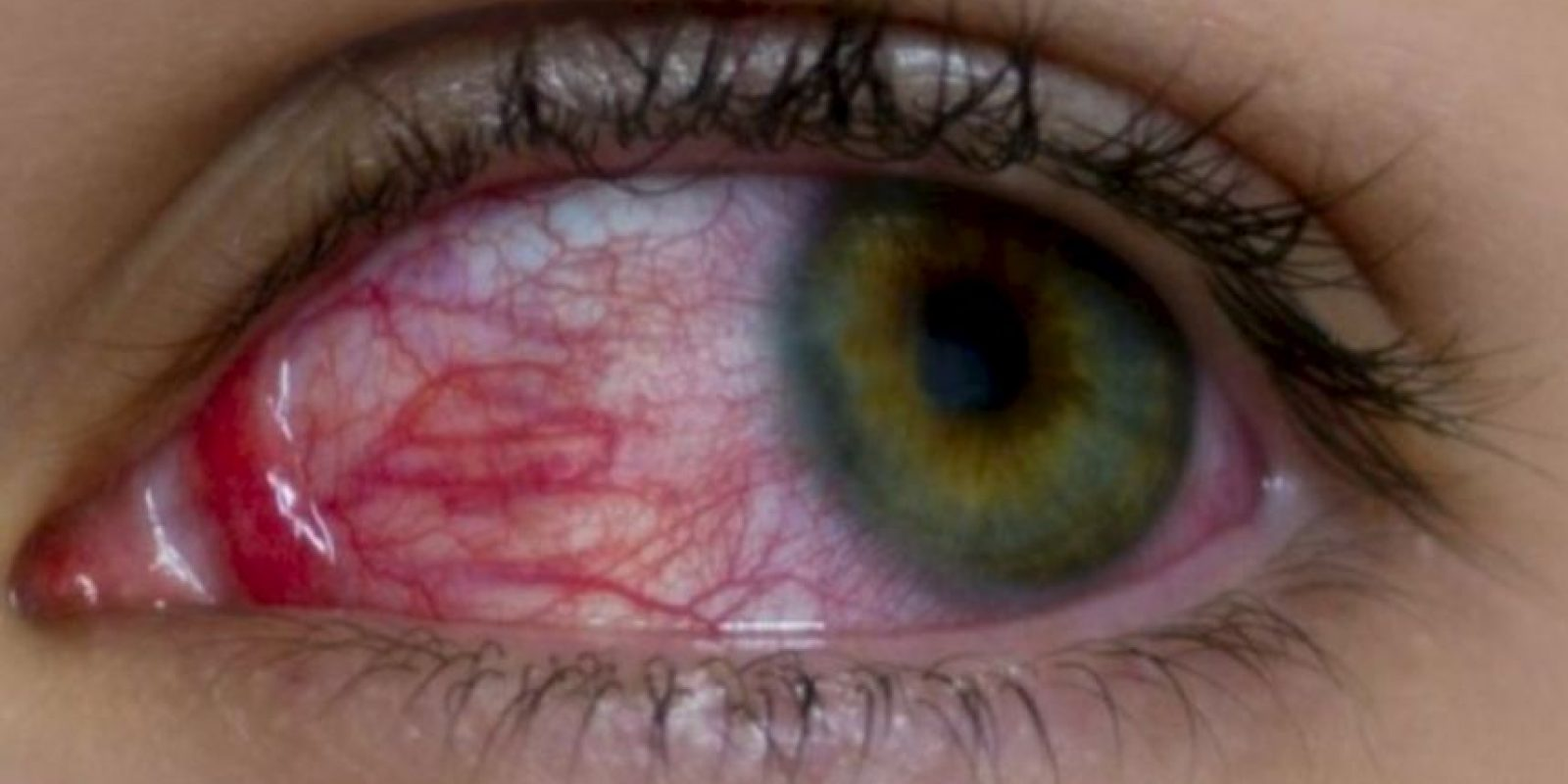 Esto podría ayudarles a lucir unos ojos blancos y no amarillos. Foto:vía Pinterest