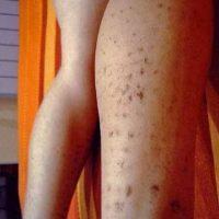 5. Mujer española sufrió fuertes quemaduras a causa de una depilación láser. Foto:ía Instagram/#DepilacionFail