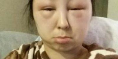 18 mujeres que sufrieron terribles daños a causa de un tratamiento de belleza