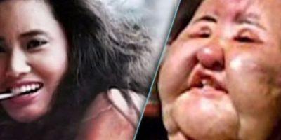 15. Hang Mioku, quien desde los 28 años era adicta a las cirugías. A los 50 y ante la negativa de su doctor para hacerle una más, se inyectó aceite de cocina. Se desfiguró. Foto:Smosh