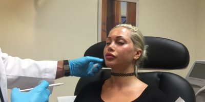 Hasta que comenzó con una cirugía de nariz. Foto:vía Barcroft