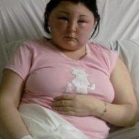 También sufrió una grave inflamación en rostro y cabeza. Foto:Tumblr