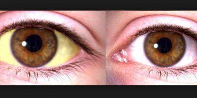 3. Ojos amarillos. El síntoma puede ser un signo de enfermedad hepática potencialmente mortal, que no debe ser ignorado. Foto:Pixabay