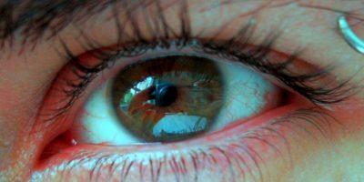 Es aconsejable acudir a un médico, ya que puede resultar una condición grave como la conjuntivitis, y glaucoma. Aunque también hay otras explicaciones, menos graves a menudo provocadas por su vida diaria. Foto:Pixabay