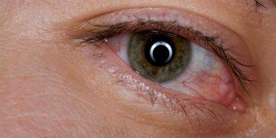 4. Bolsas debajo de los ojos. Foto:Pixabay