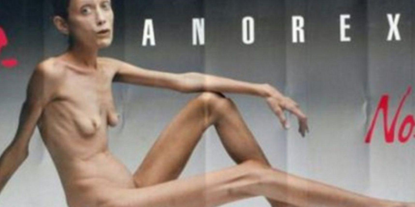 Isabelle Caro protagonizó esta campaña en 2007. Pero eso no impidió que se muriera en 2010 de neumonía. Foto:Getty Images