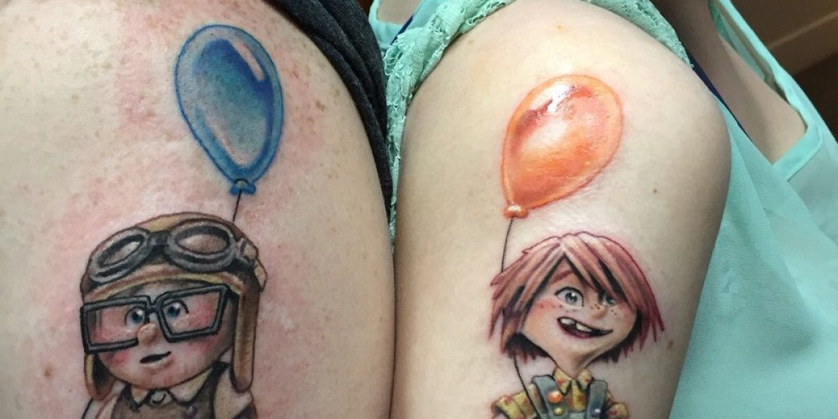 Tecnología láser para eliminar tatuajes