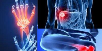 Tratamiento artritis reumatoide es determinante para recuperación del paciente