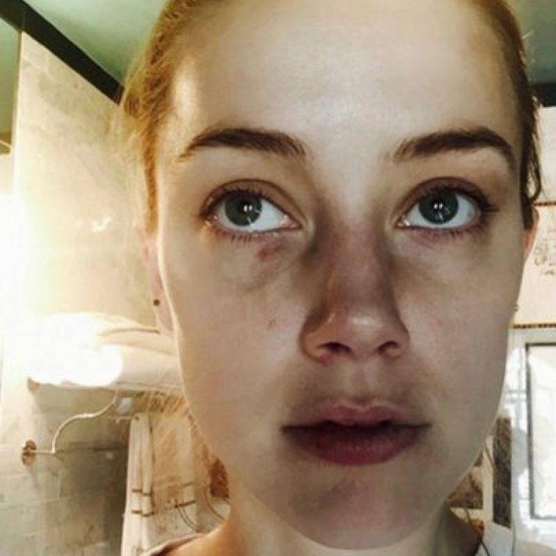 La actriz asegura haber sido golpeada por Deep. Foto:Revista People